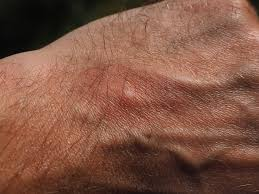 éviter que piqûre de moustique gratte